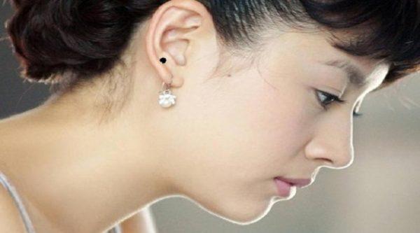 Nốt ruồi ở tai phụ nữ ý nghĩa như thế nào?