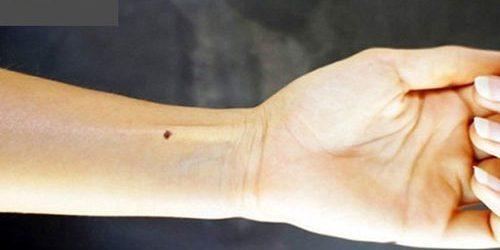 Nốt ruồi ở cổ tay nói lên điều gì về vận mệnh, số phận?