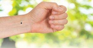 nốt ruồi ở cổ tay trái