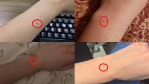 nốt ruồi ở cổ tay trên