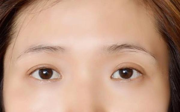 Nguyên nhân vì sao lông mày bị rụng quá nhiều và biện pháp khắc phục